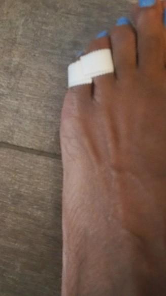 toe 1 (2)